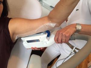 Coolsculpting Prozess - so funktioniert Fettreduktion durch Kältebehandlung