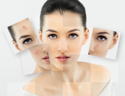 Wollen Sie Akne nachhaltig verbessern? Dann lesen Sie hier, was es für neue Behandlungsmethoden gibt.