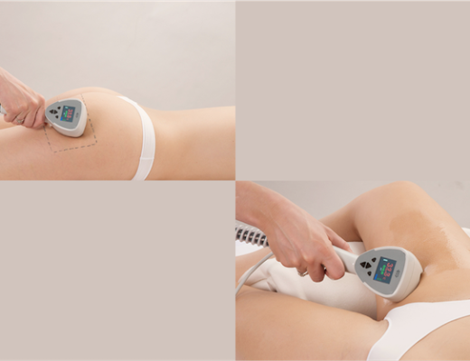 Unter Cellulite leiden 80 bis 90 Prozent aller Frauen – Models übrigens inbegriffen. Können Behandlungen mit Radiofrequenz helfen? Ein Erfahrungsbericht.