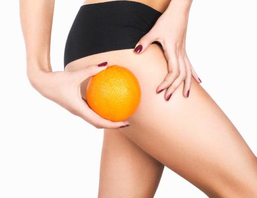 Ob Cremes, Diät oder Sport – bislang half nichts wirklich gegen schwere Cellulite. Mit Cellfina kommt jetzt eine neue Cellulite-Behandlung nach Deutschland.