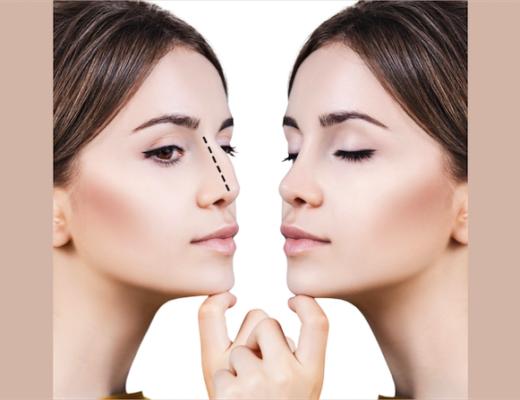 Im Gesicht kommt alles auf Nuancen an. Das gilt auch für die Nase als Blickfang. Auf was muss man achten, wenn man eine Nasenkorrektur wünscht?